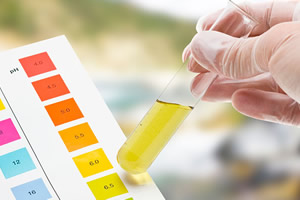 A importância do exame de urina