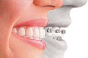 Existe tempo de adaptação ao aparelho odontológico?