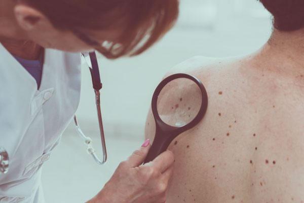 Todo mundo precisa saber sobre doenças de pele!