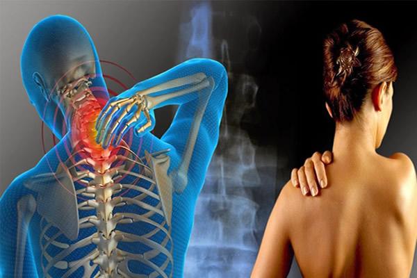 Como funciona o tratamento da Esclerose Múltipla no plano de saúde?